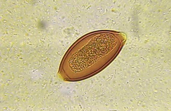 As larvas fracassam na Doença de Crohn