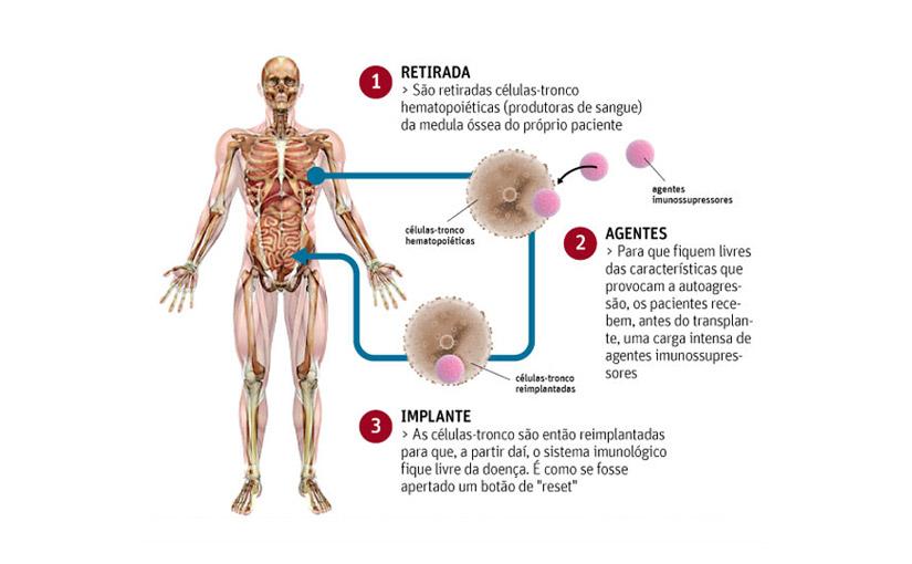 Brasil tem 1º caso de sucesso em terapia celular contra Doença de Crohn